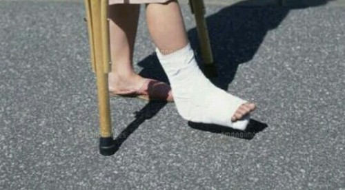 足を骨折する夢