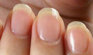 [夢占い]爪の夢でわかるアナタの今の状態とは?